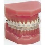 Протектор слизистой оболочки рта набор в/ч и н/ч